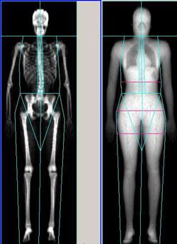 OsteoporosisXray